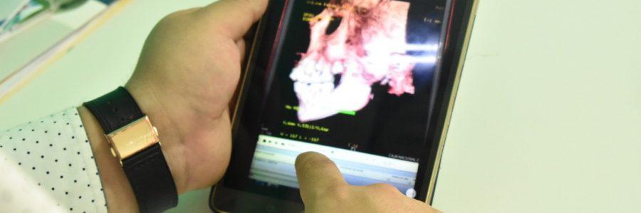La planificación virtual y la cirugía ortognática llegan a Tarija